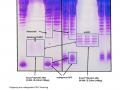 Erythropoietin (EPO) analysis