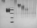 IEF separation of polyclonal antibodies
