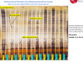 Multiple Sclerosis analysis with ProPhyl Air (unknown neurological diseases)