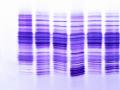 CDG Transferrin analysis 2